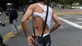 Image: A wounded protester shows his back as riot police clash with opposit