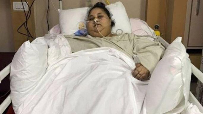 مصر: أسمن إمرأة في العالم تفقد 240 كيلوغراما من وزنها