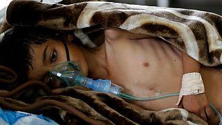 قحطی زندگی هفت میلیون یمنی را تهدید می کند