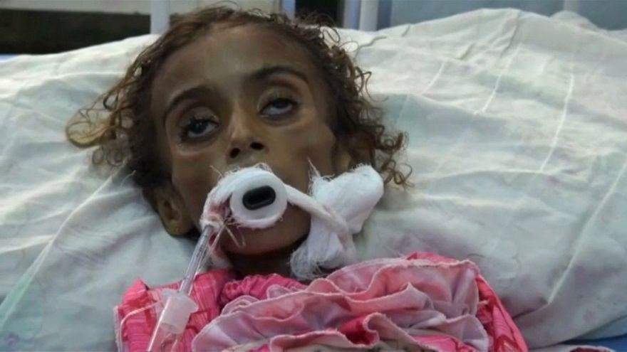 ديدان تفتك بطفلة في اليمن
