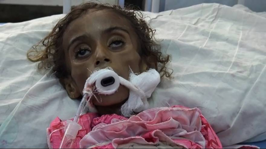 Seven-year-old Jamila is another victim of Yemen's civil war
