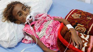سرگذشت غم انگیز جمیله؛ دختری یمنی که از بیماری و گرسنگی جان سپرد