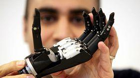 Βιονικό χέρι με τεχνητή νοημοσύνη