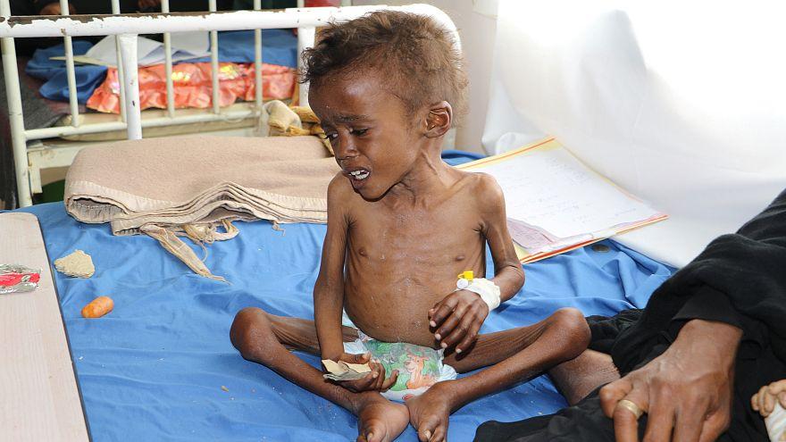 اليمن يواجه أكبر أزمة للأمن الغذائي في العالم
