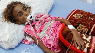 المجاعة على أبواب اليمن