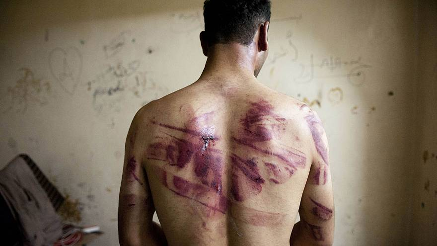 Image: A Syrian man shows marks of torture on his back, after he was releas