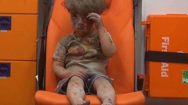 New photos of Omran Daqneesh, the face of Syrian suffering