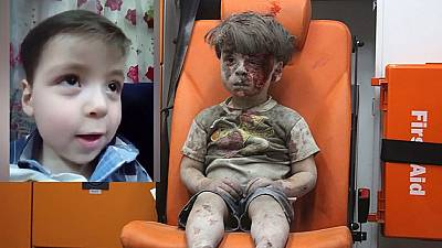 Bloodied Syrian boy whose photo went viral on Twitter in good shape now