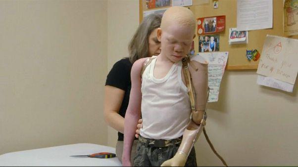 Sauver les albinos, victimes en Afrique