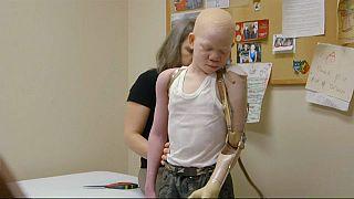 Une journée mondiale pour sauver les albinos, torturés en Afrique