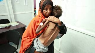 اليمنيون بين مطرقة الحرب وسندان وباء الكوليرا