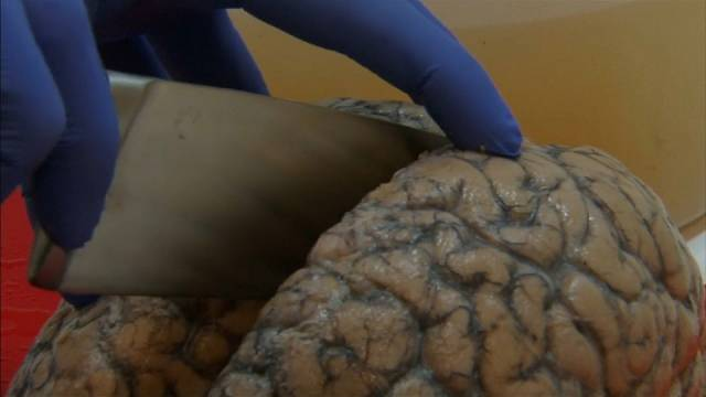 3000 دماغ بشري تحت تصرف أطباء مختصين في بلجيكا