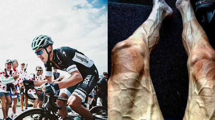 طواف فرنسا:الدراج البولندي بولجانسكي ينشر صورا مروعة لساقيه