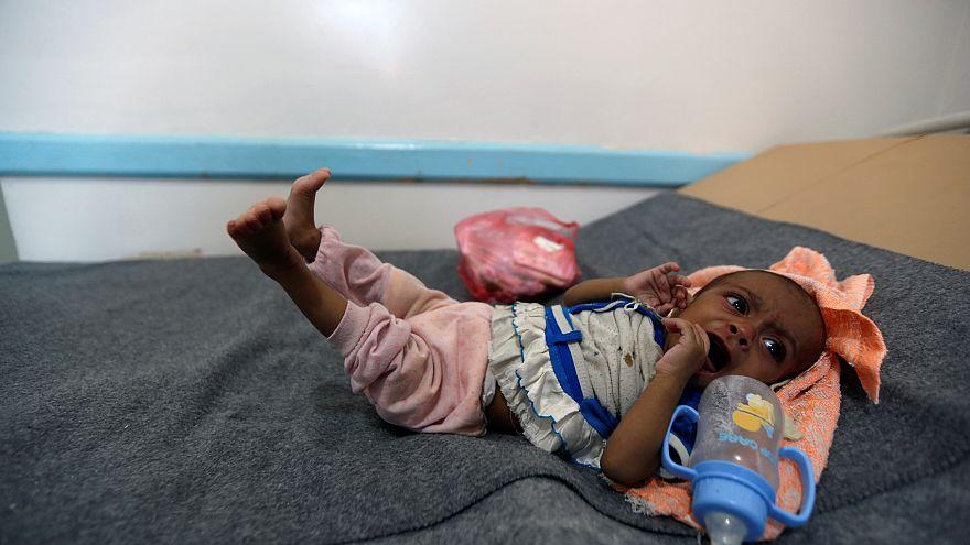 وباء الكوليرا يهدد 600 ألف يمني