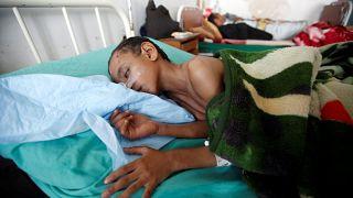 Crianças iemenitas malnutridas e face a uma epidemia de cólera mortífera