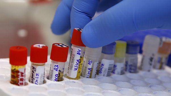 تازهترین تحقیقات: انتقال ویروس زیکا با بوسه بعید است