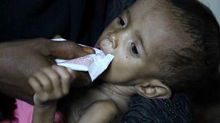 Cholera-Epidemie im Jemen bedroht mehr als eine Million Kinder