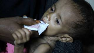 """Save The Children"" alerta para epidemia de cólera no Iémen"