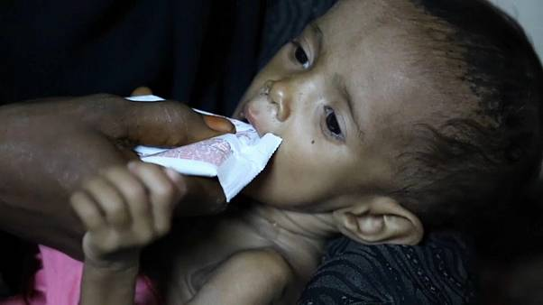 One million Yemeni children at risk of cholera - charity