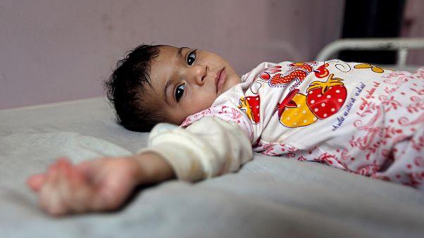 یمن؛ وبا در انتظار آنها که از سوء تغذیه جان بدر می برند