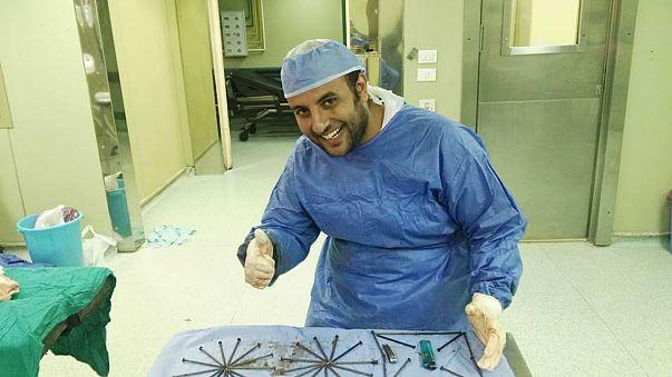 بالصور: مفاجأة داخل معدة مريض مصري