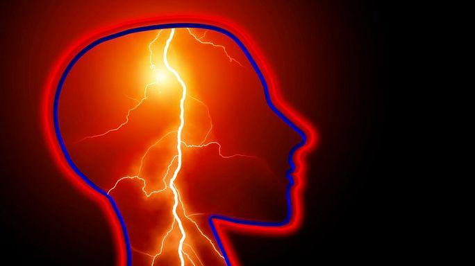 تقنية تتنبأ بالسكتة الدماغية قبل حدوثها
