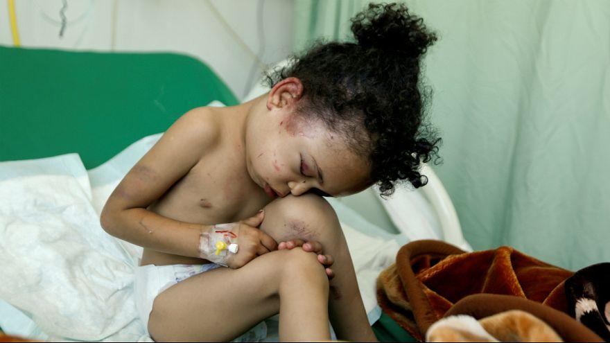 جنگ یمن؛ عکسهایی که عربستان نمی خواهد دیده شوند