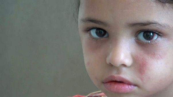 Sole strike survivor, 5, helps open world's eyes to Yemen crisis