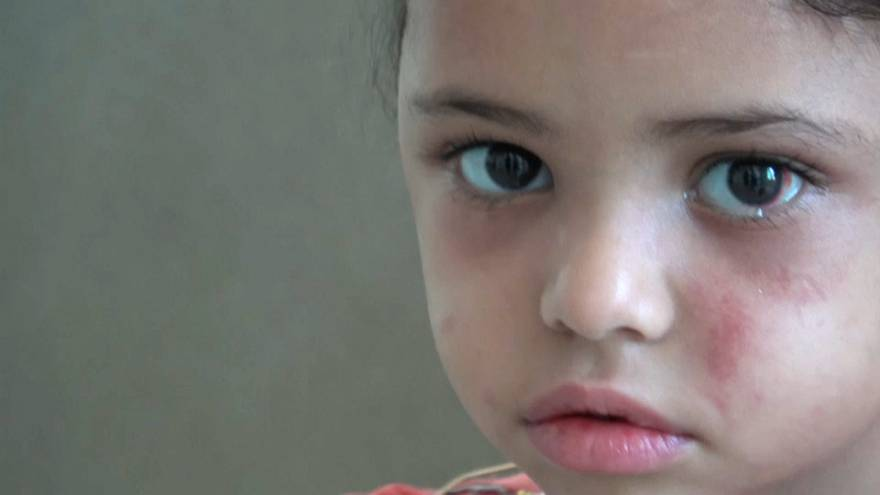 Sole strike survivor, 5, helps open world's eyes to Yemen crisis