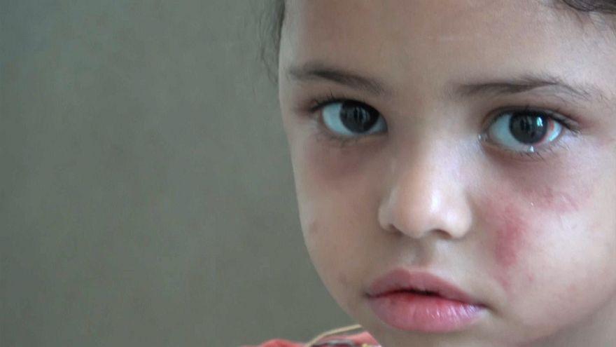 هل تفتح عين بثينة عيون العالم على حرب منسية في اليمن؟