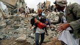 Yemenli kızın görüntüsü internette viral oldu