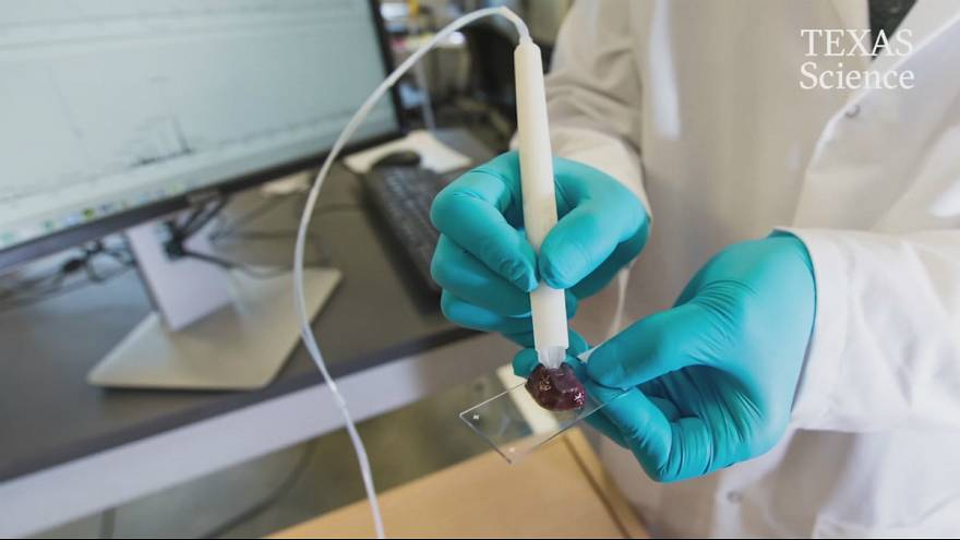 A 'pen' that can diagnose cancer in 10 seconds