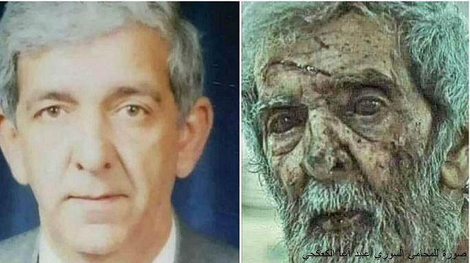 أثر الحرب السورية في وجه أحد مواطنيها... لمن هذه الصورة؟