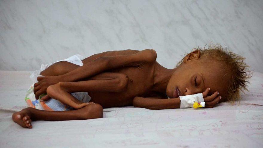 [شاهد] كيف أصبح الطفل اليمني سليم بعد معاناة طويلة مع سوء التغذية