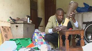 Ugandan makes affordable prosthetic limbs for amputees