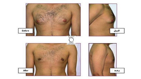 ما هي عمليات التجميل الأكثر شيوعا لدى الرجال؟