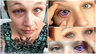 نابینایی در یک قدمی مدل کانادایی که چمشش را خالکوبی کرد
