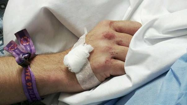 Las Vegas saldırısında yaralanan genç: Kurtulduğuma inanamıyorum