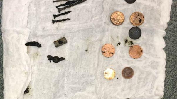 Hastanın midesinden 100'den fazla metal parça çıkarıldı