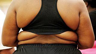 """L'obésité, cette """"épidémie"""" qui menace l'Afrique"""
