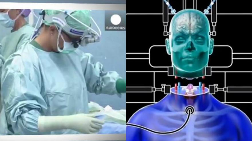 إجراء أول عملية جراحية لزرع الرأس في 2018