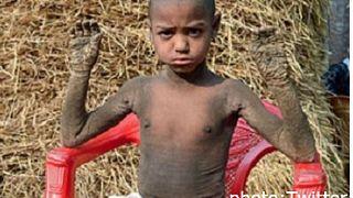 طفل تحجر جسده الغض من مرض جلدي