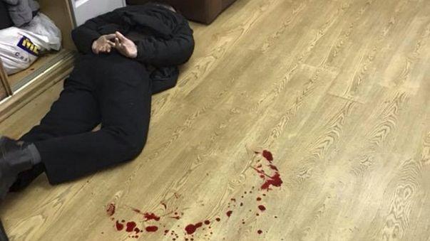 """Ведущую """"Эха Москвы"""" ранили ножом"""