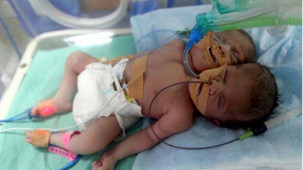 Γεννητούρια Σιαμαίων στη Λωρίδα της Γάζας