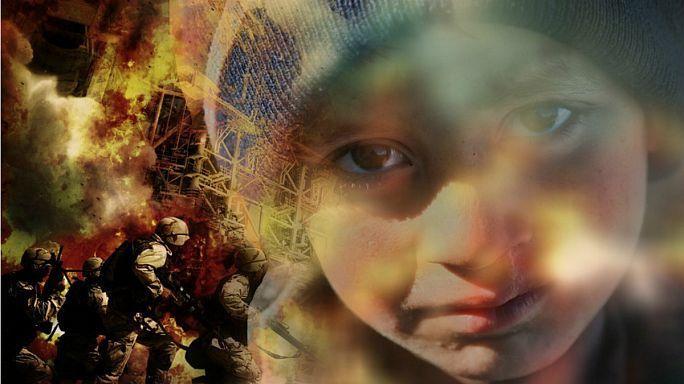 شبح سوء التغذية في سوريا يهدّد الأطفال