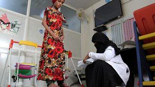 """لقاء آخر بعد عام .. """"سعيدة بغيلي"""" تتعافي من سوء التغذية الحاد في اليمن"""