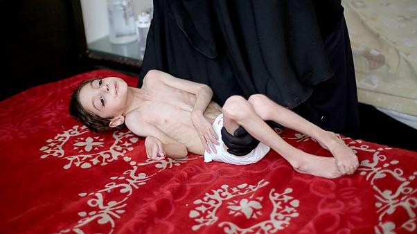 المجاعة تفتك بأطفال الغوطة الشرقية