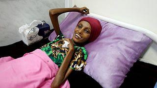 یمن در آستانه بزرگترین قحطی دهههای اخیر