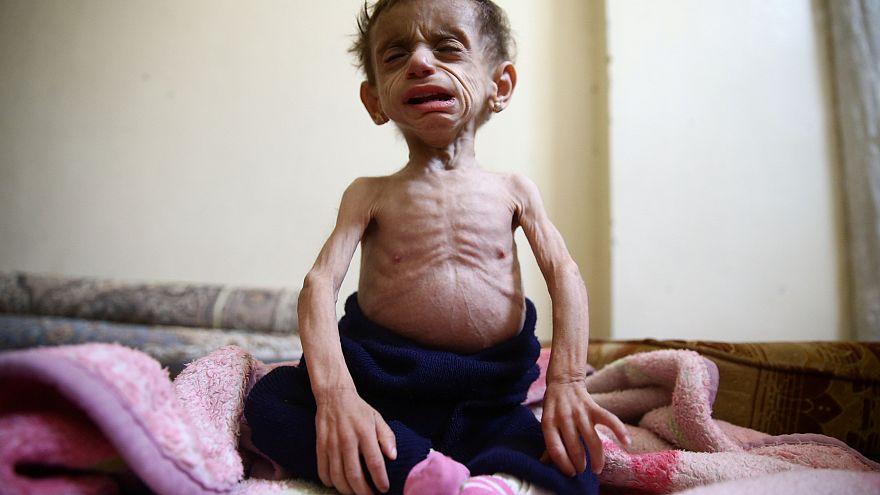 يأكلون القمامة ويفقدون الوعي من شدة الجوع.. أهلا بك في الغوطة الشرقية