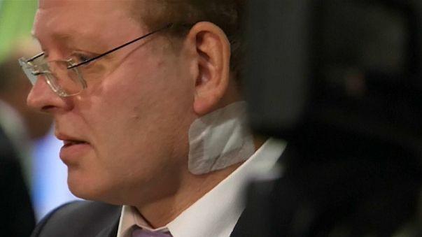 German mayor in knife attack